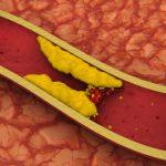 Colesterol alto não causa doenças do coração