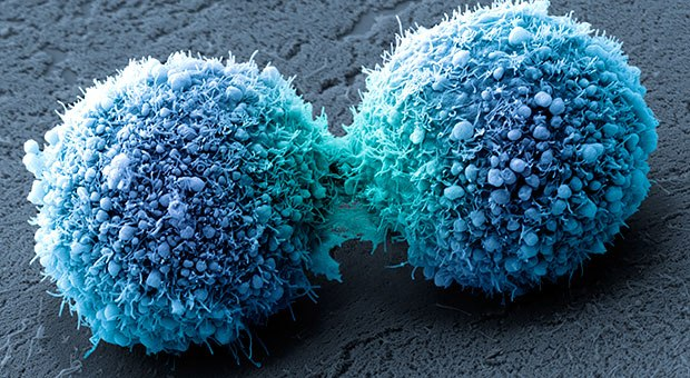 cancer-cells
